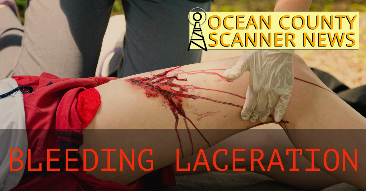 Lacey: Bleeding Laceration