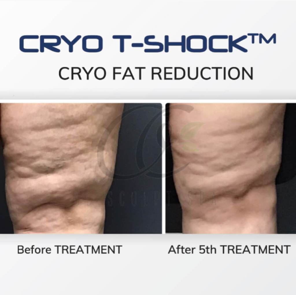 Cryo T Shock Fat Removal Front Thigh