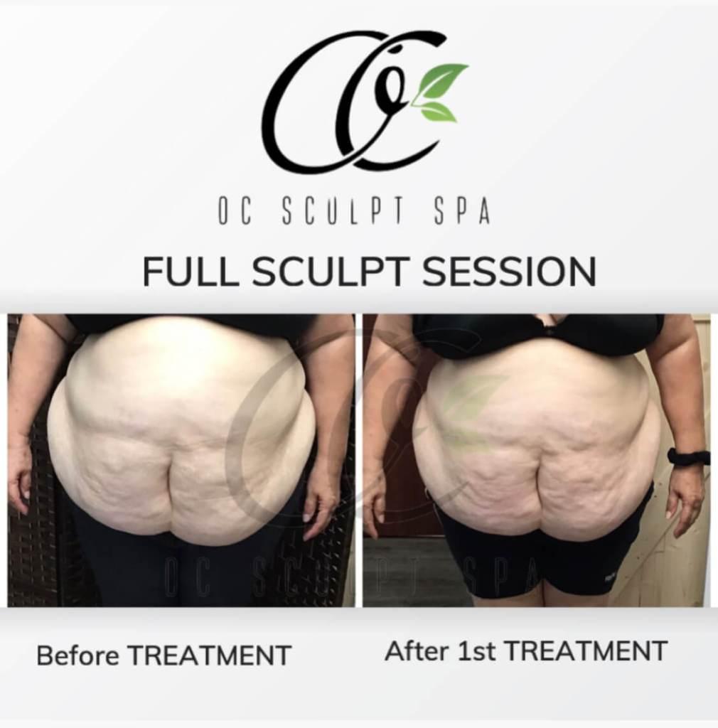 Full Sculpt Session Stomach and Abdomen