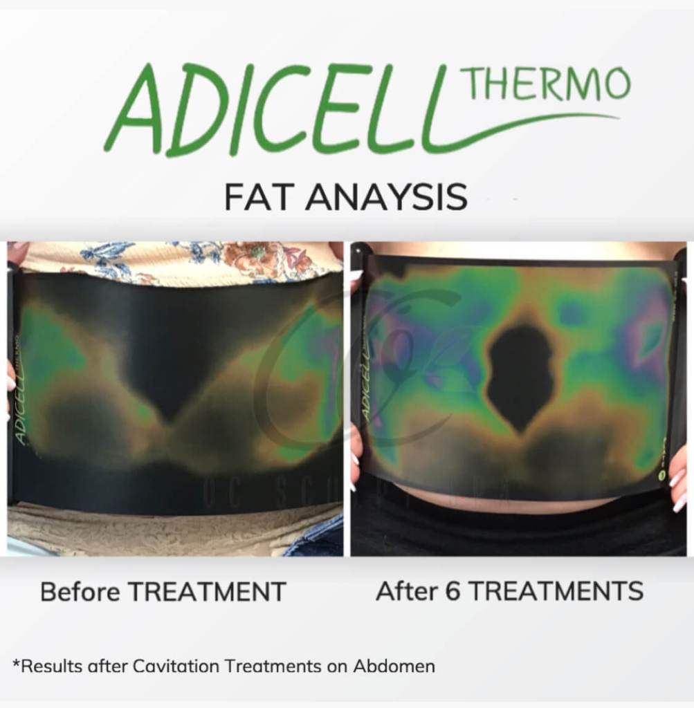 Adicell Results Measuring Fat Content and Type After Ultrasound Fat Cavitation Treatment Stomach and Abdomen