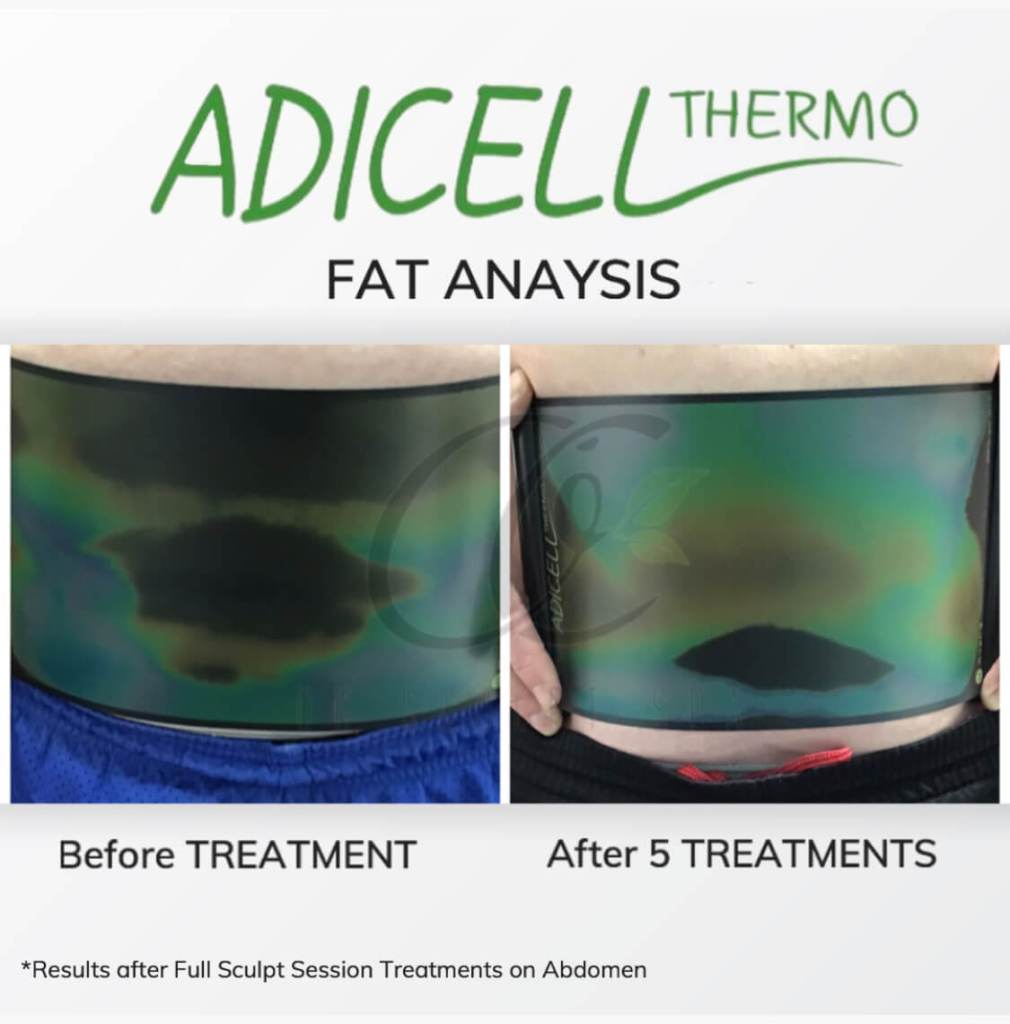 Adicell Results Measuring Fat Content and Type After Full Sculpt Session Stomach and Abdomen