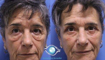lower blepharoplasty 231219 1