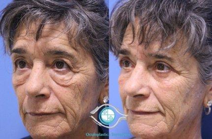 lower blepharoplasty 231219 2