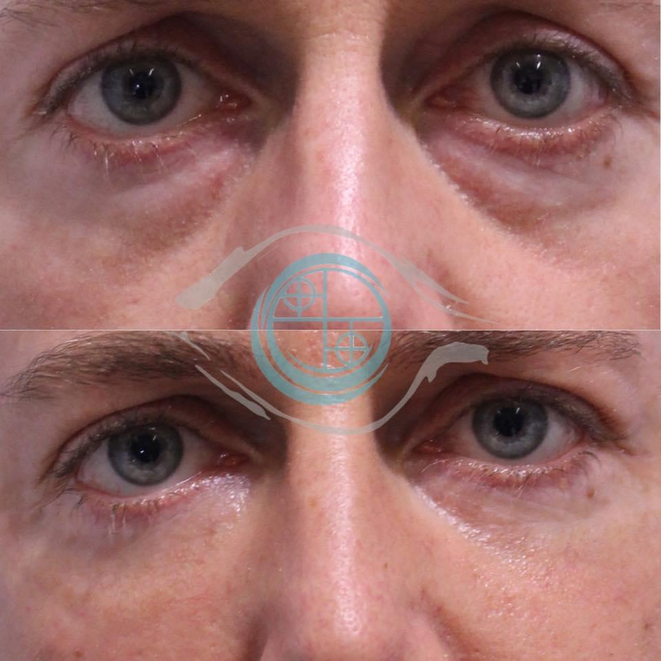 chirurgia estetica maschile