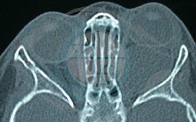 Caso 6. cisti orbitaria congenita malformativa. TAC mostra enorme cisti dietro il bulbo oculare a sinistra