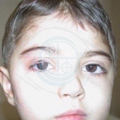 Paralisi del faciale nel Bambino. foto 1 - pre