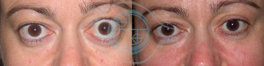 Orbitopatia Tiroidea Foto 8