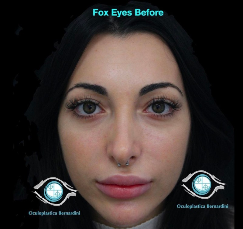 fox eyes 1