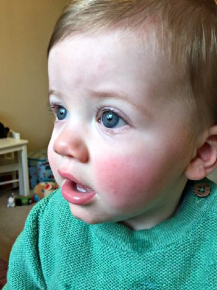To Piglet, On Your 1st Birthday   Rosy Cheeks http://oddhogg.com