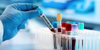 exame-de-sangue-77930-article