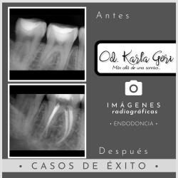 Endodoncia Karla Gori Bogotá Colombia