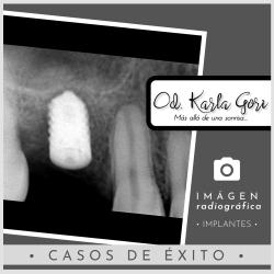 Implante Karla Gori Odontologia
