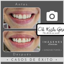 Gingivectomía odontología Bogotá Cedritos