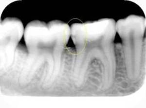 caries interproximal