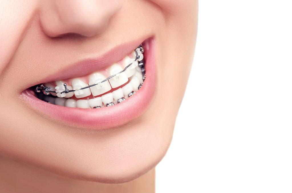 Aparelho dentário, e agora?