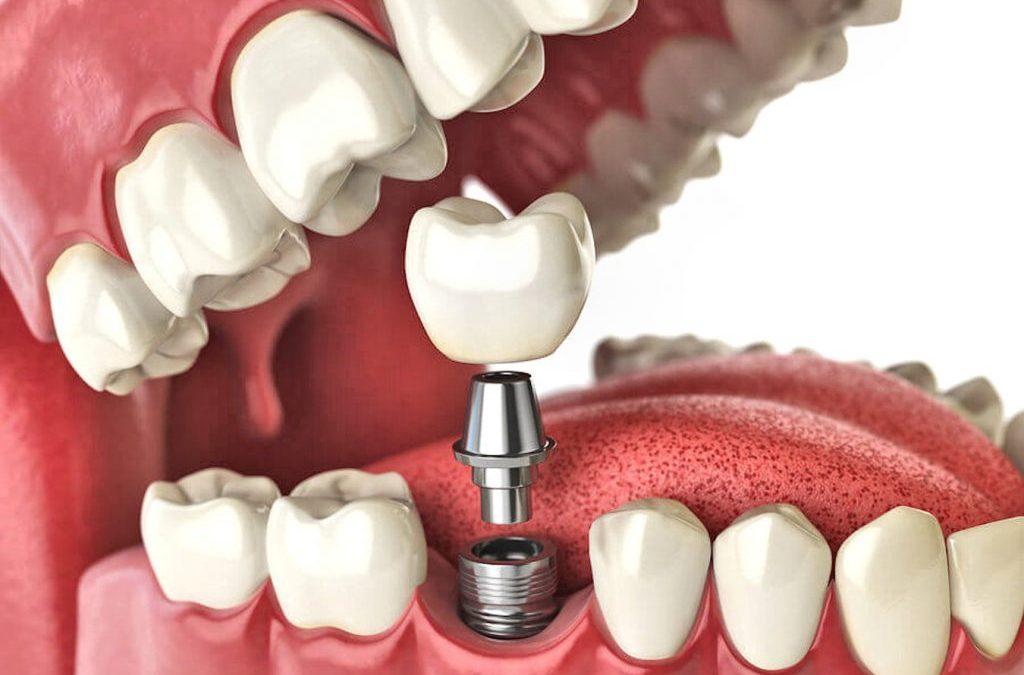 Implantes Dentários para todos