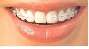 ortodoncia invisible medellin