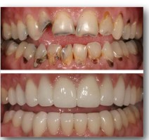 caso antes despues odontologia