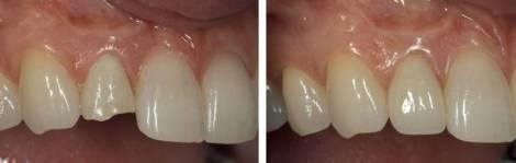 casos antes y despues odontologia estetica diente fractura partido