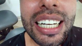 Corona dental Zirconio