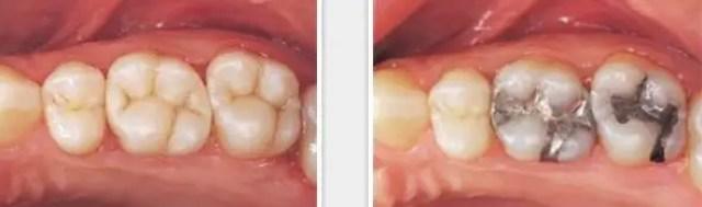 cambio calzas amalgama resina dental odontologia estetica antes y despues
