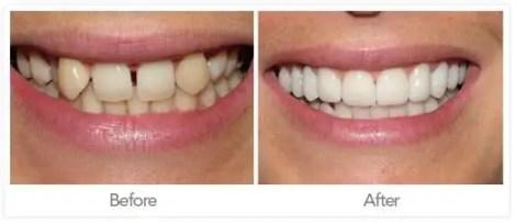 Odontología Medellín, mejor consultorio odontologico Medellin