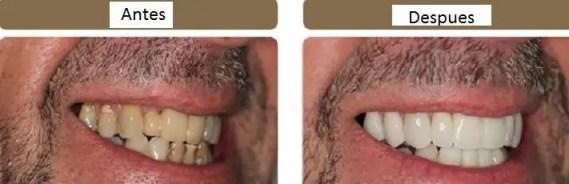 diseño de sonrisa caso antes despues odontologia medellin