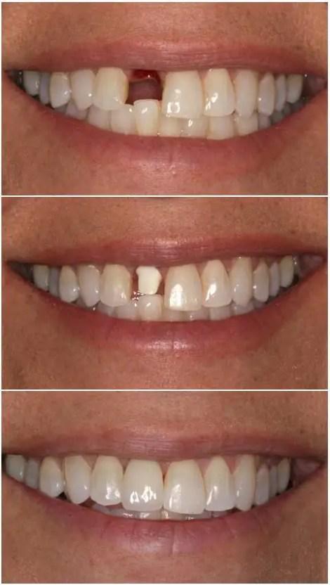 implantes dentales foto antes despues