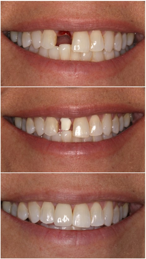 implantes dentales foto antes despues
