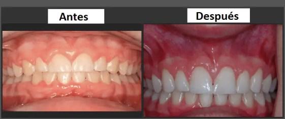 odontologia estetica caso cambio odontologia medellin