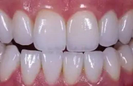 mejores coronas dentales porcelana zirconio Medellin Colombia