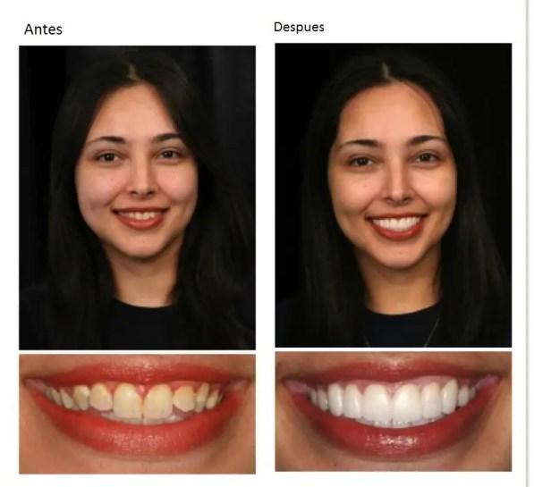 Odontología Medellin, consultorio odontológico Medellin