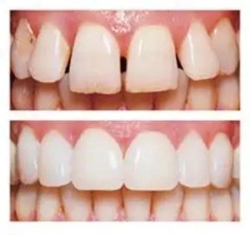 carillas dentales en porcelana medelllin