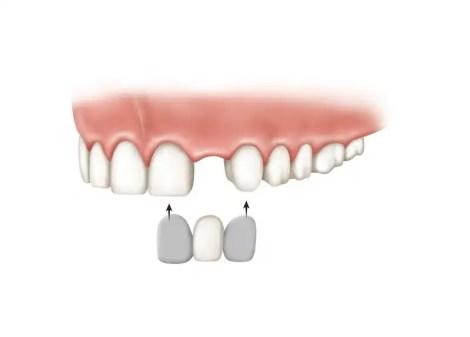 Puende dental fijo economico porcelana