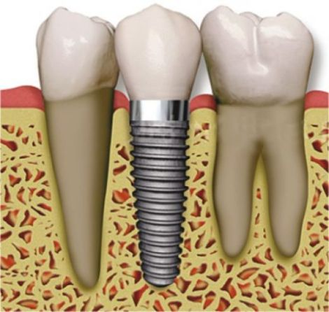 implantes dentales medellin