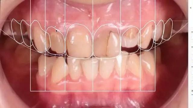 Diseño de sonrisa caso despues odontologia Medellin