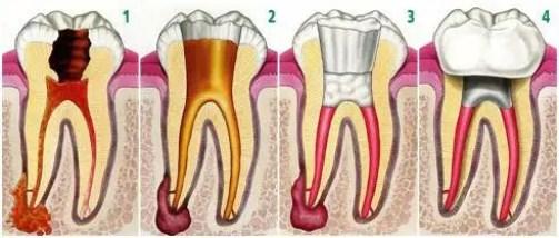 Tratamiento-de-conductos-Medellin endodoncia
