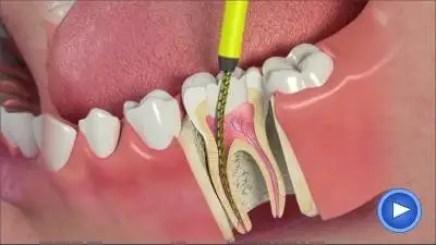 Tratamiento de conductos-endodoncia-Medellin