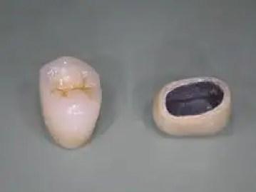 Corona dental tipo