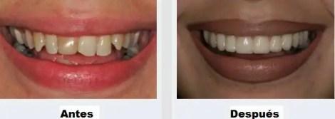 Diseño de sonrisa antes despues Odontología Estetica Medellin