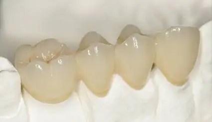 Puente dental porcelana fijo