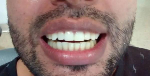 Corona dental zirconio Medellín caso después