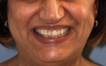 Diseno-de-sonrisa-medellin-carillas-porcelana-caso-antes-despues
