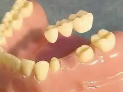 puente-dental-fijo-porcelana-puente-zirconio