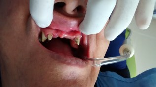 Puente dental zirconio antes despues