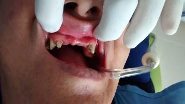 Puente dental zirconio antes despues