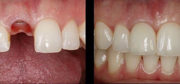 Implante-dental-caso-Medellin-Colombia