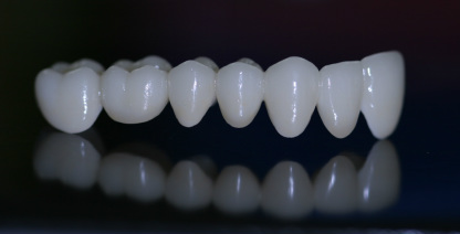 puente-dental-zirconio-colombia