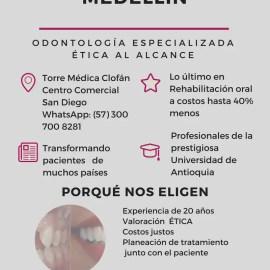 IMPLANTES DENTALES 40% menos