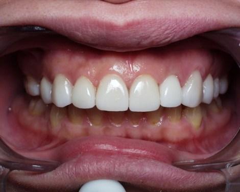 Carillas de Porcelana Odontología Ideal Medellín